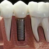 """Стоматология """"Dental home"""" Акция !!! Лечение, отбеливание, в Владивостоке"""