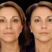 Увеличение губ безинъекционным методом, безинъекционная мезотерапия, омоложение лица, Качественно с гарантией. Электропорация, в г.Днепропетровск