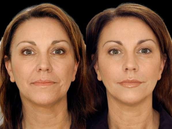 Увеличение губ безинъекционным методом, безинъекционная мезотерапия, омоложение лица, Качественно с гарантией. Электропорация